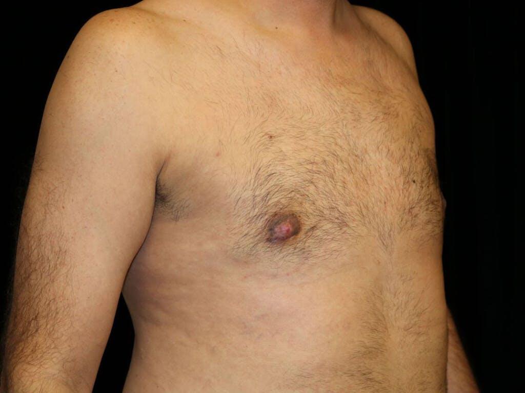 Gynecomastia Gallery - Patient 39352470 - Image 4