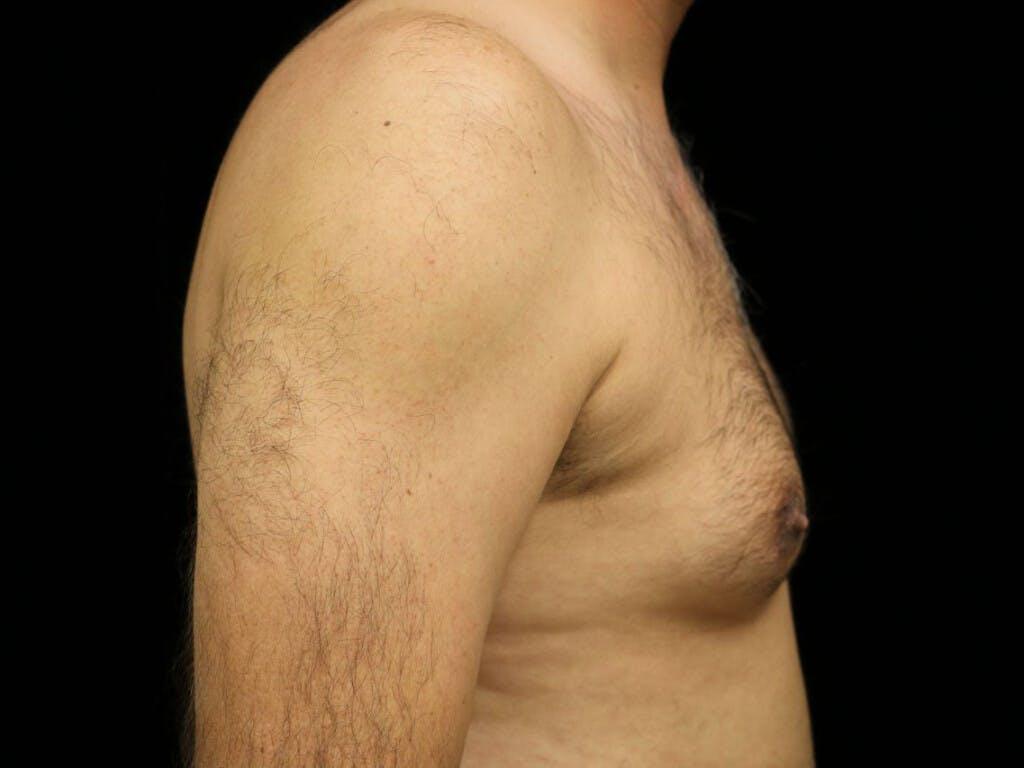 Gynecomastia Gallery - Patient 39352470 - Image 5