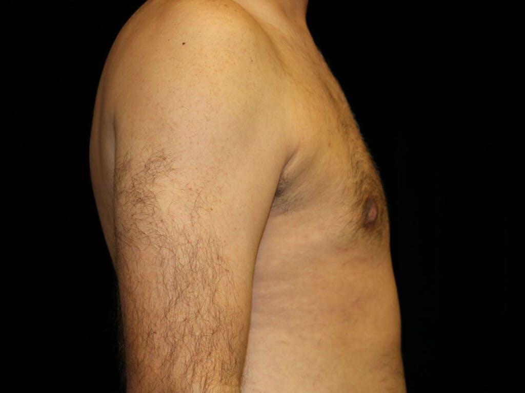 Gynecomastia Gallery - Patient 39352470 - Image 6