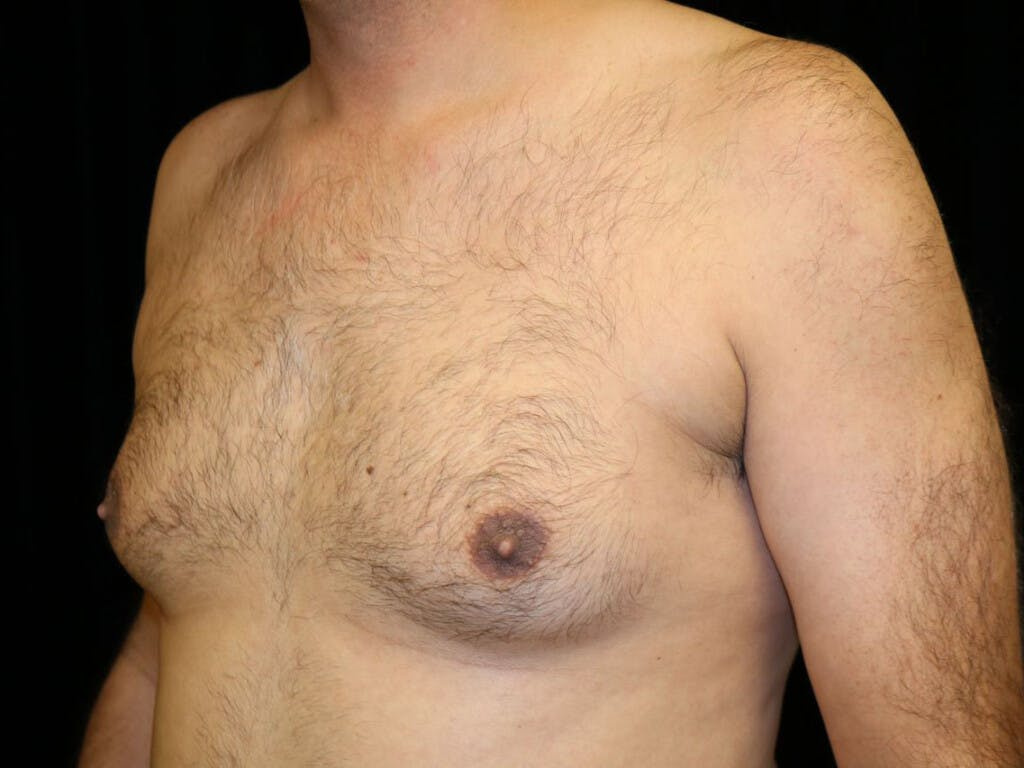 Gynecomastia Gallery - Patient 39352470 - Image 7