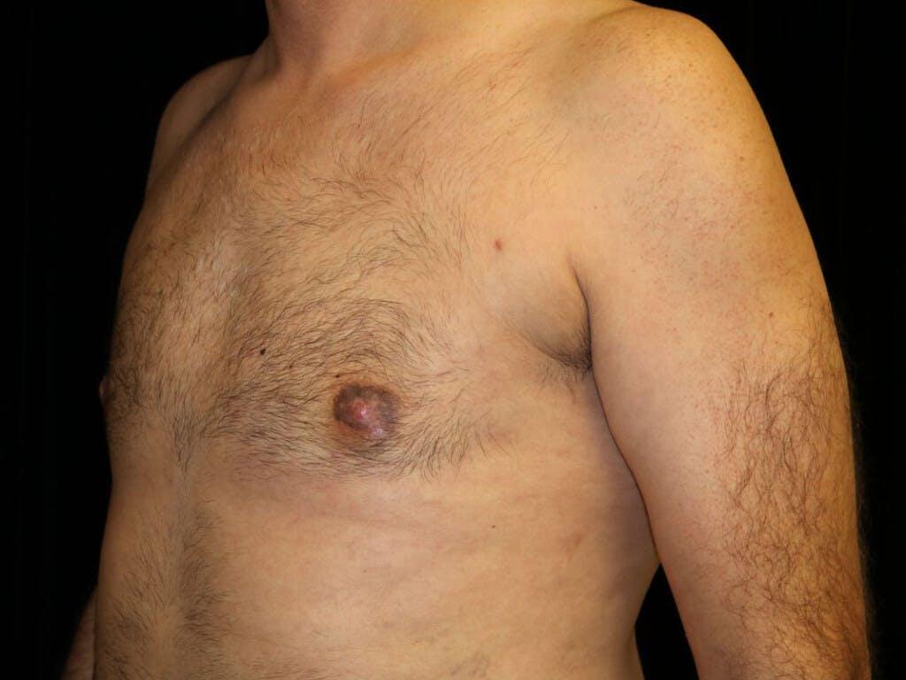 Gynecomastia Gallery - Patient 39352470 - Image 8