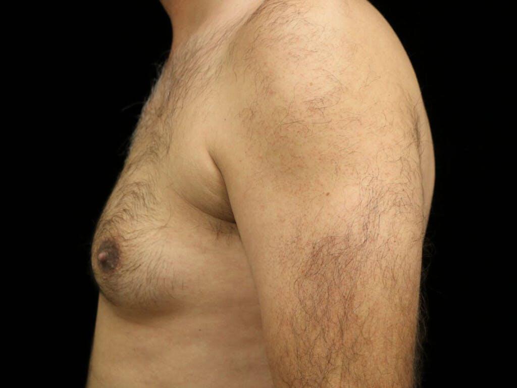 Gynecomastia Gallery - Patient 39352470 - Image 9