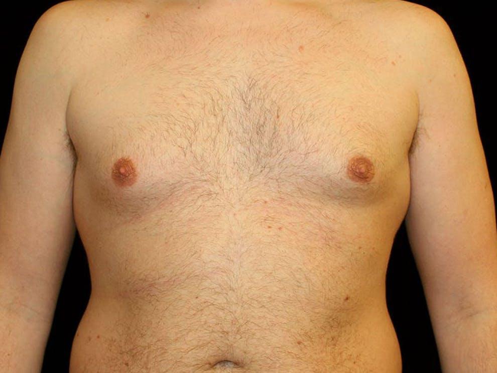 Gynecomastia Gallery - Patient 39352472 - Image 1