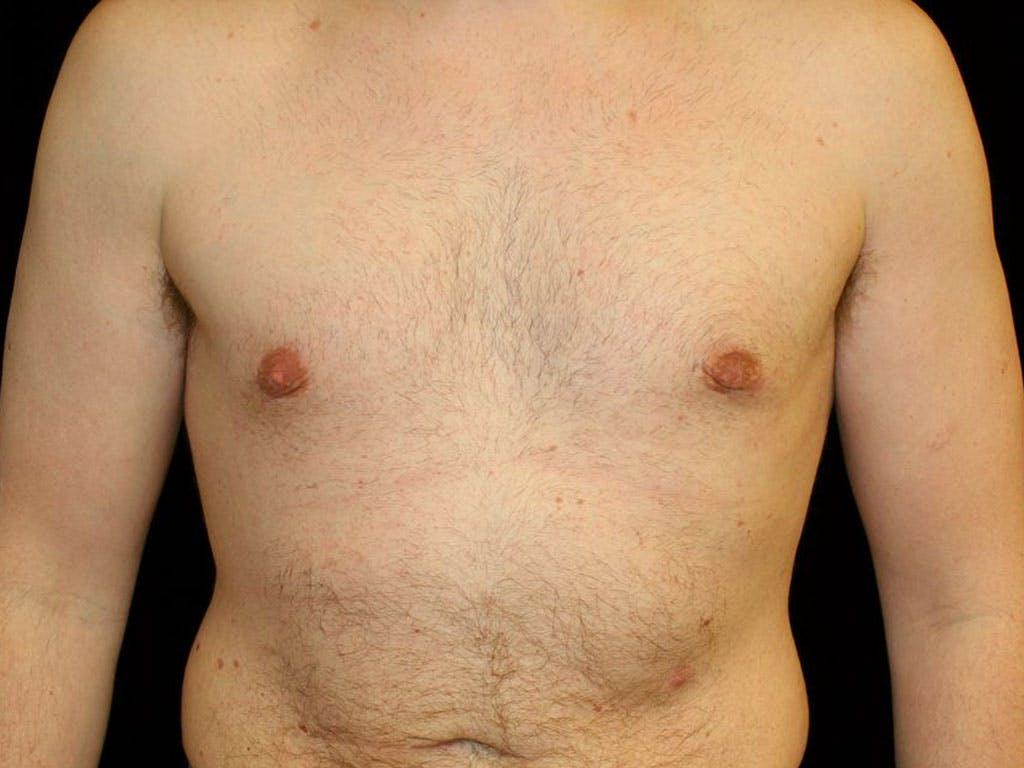 Gynecomastia Gallery - Patient 39352472 - Image 2