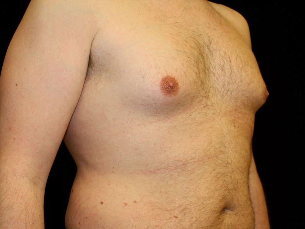 Gynecomastia Gallery - Patient 39352472 - Image 3