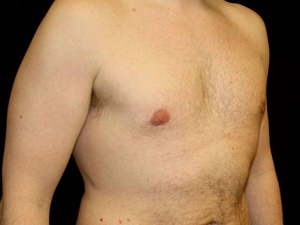 Gynecomastia Gallery - Patient 39352472 - Image 4