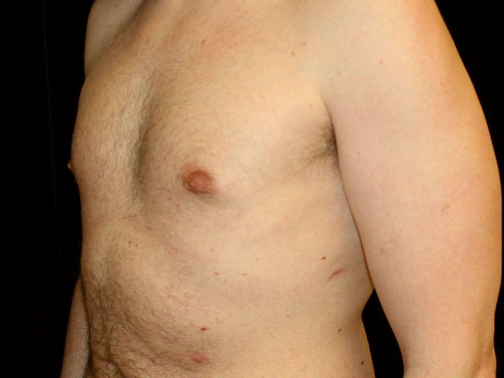 Gynecomastia Gallery - Patient 39352472 - Image 6