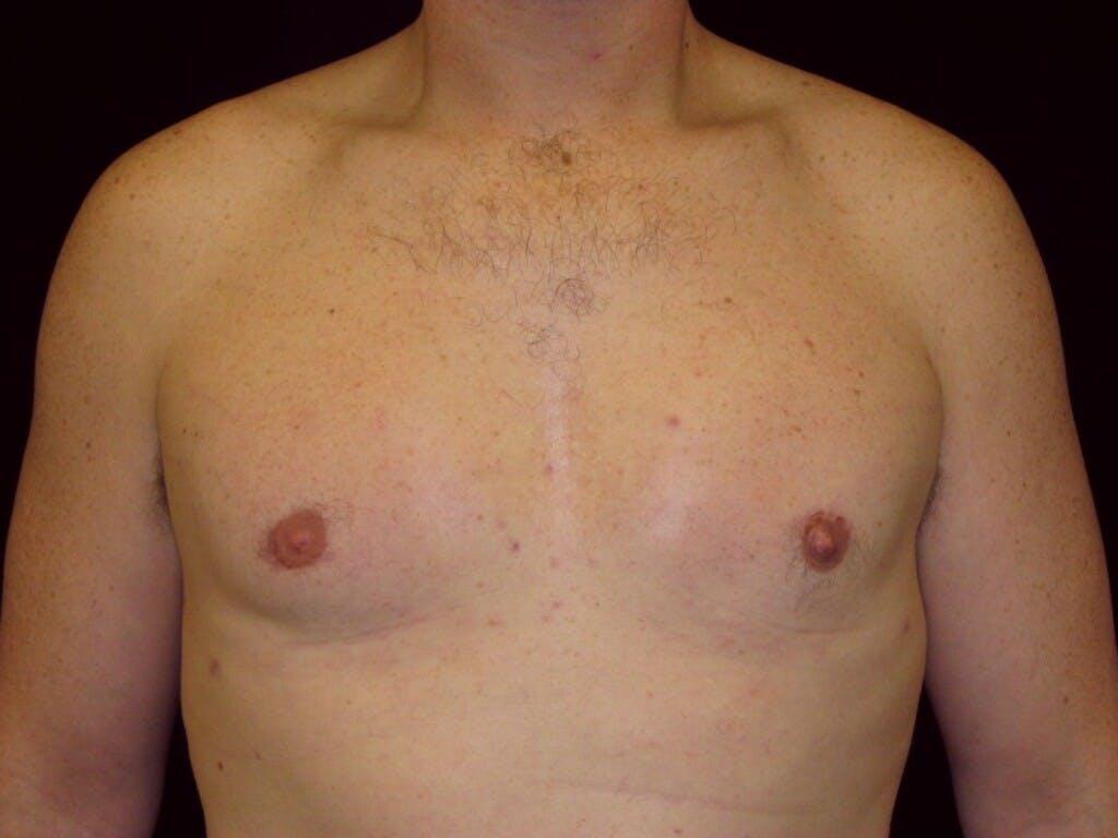 Gynecomastia Gallery - Patient 39352473 - Image 2