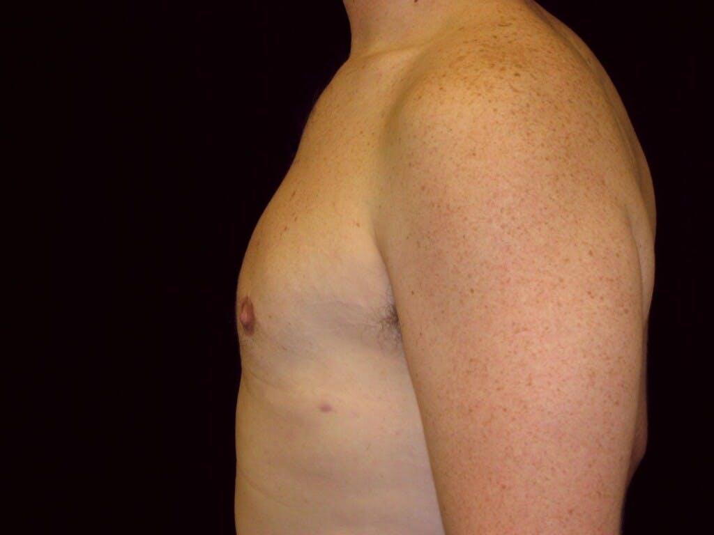 Gynecomastia Gallery - Patient 39352473 - Image 4