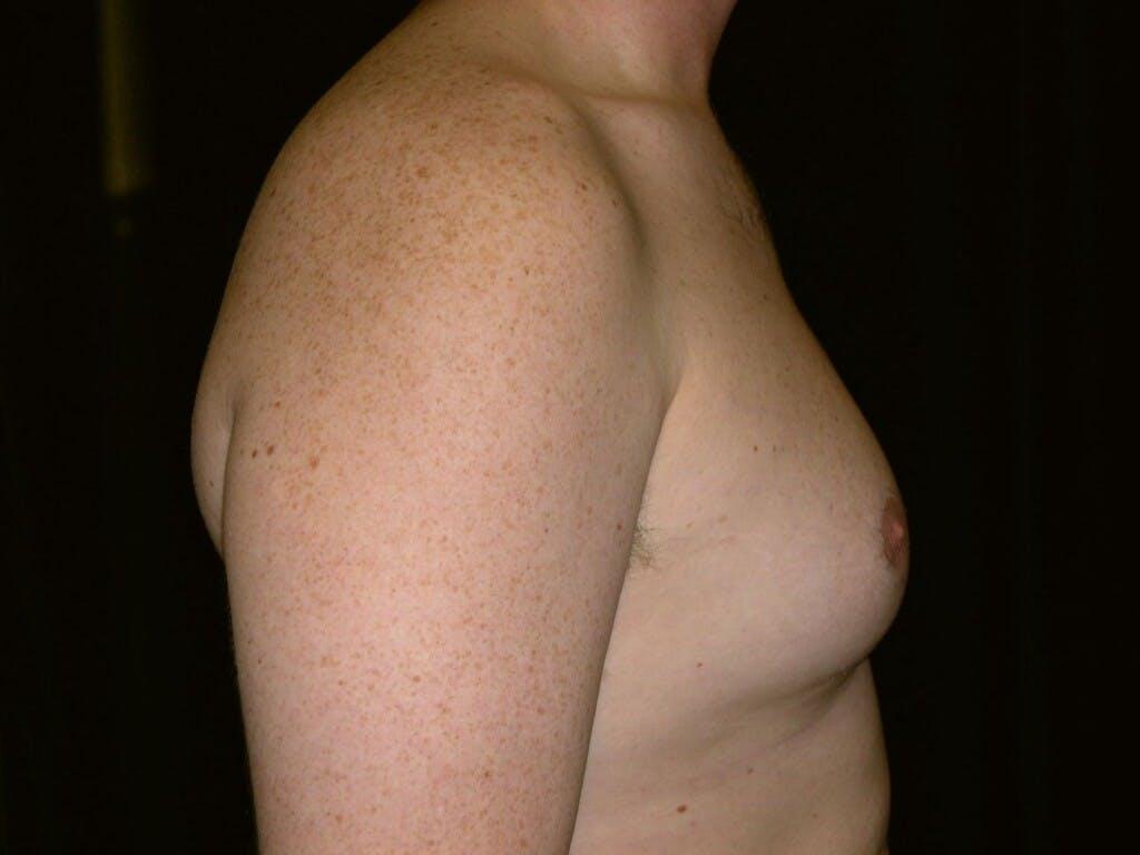 Gynecomastia Gallery - Patient 39352473 - Image 5