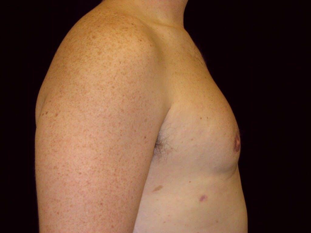 Gynecomastia Gallery - Patient 39352473 - Image 6