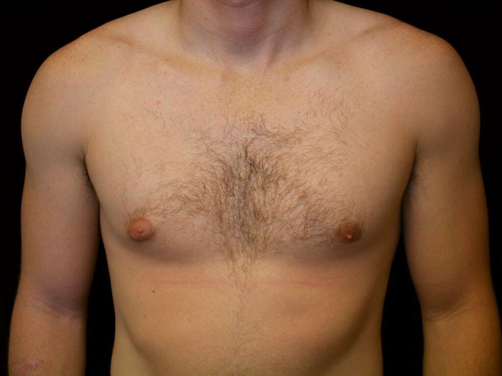 Gynecomastia Gallery - Patient 39352486 - Image 1