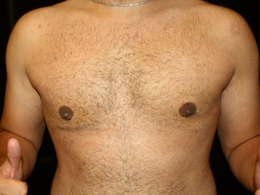 Gynecomastia Gallery - Patient 39352517 - Image 2