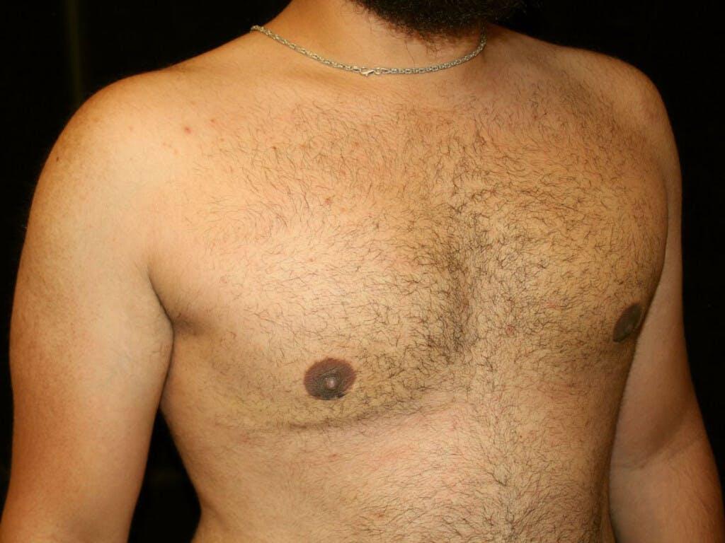 Gynecomastia Gallery - Patient 39352517 - Image 4