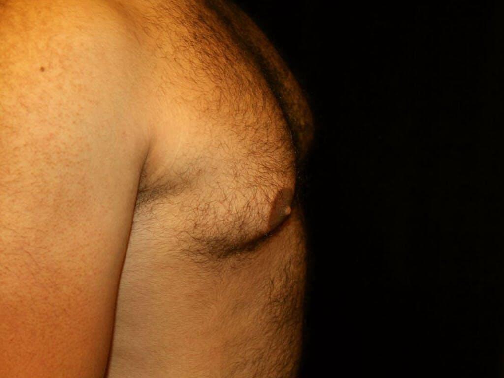 Gynecomastia Gallery - Patient 39352517 - Image 5