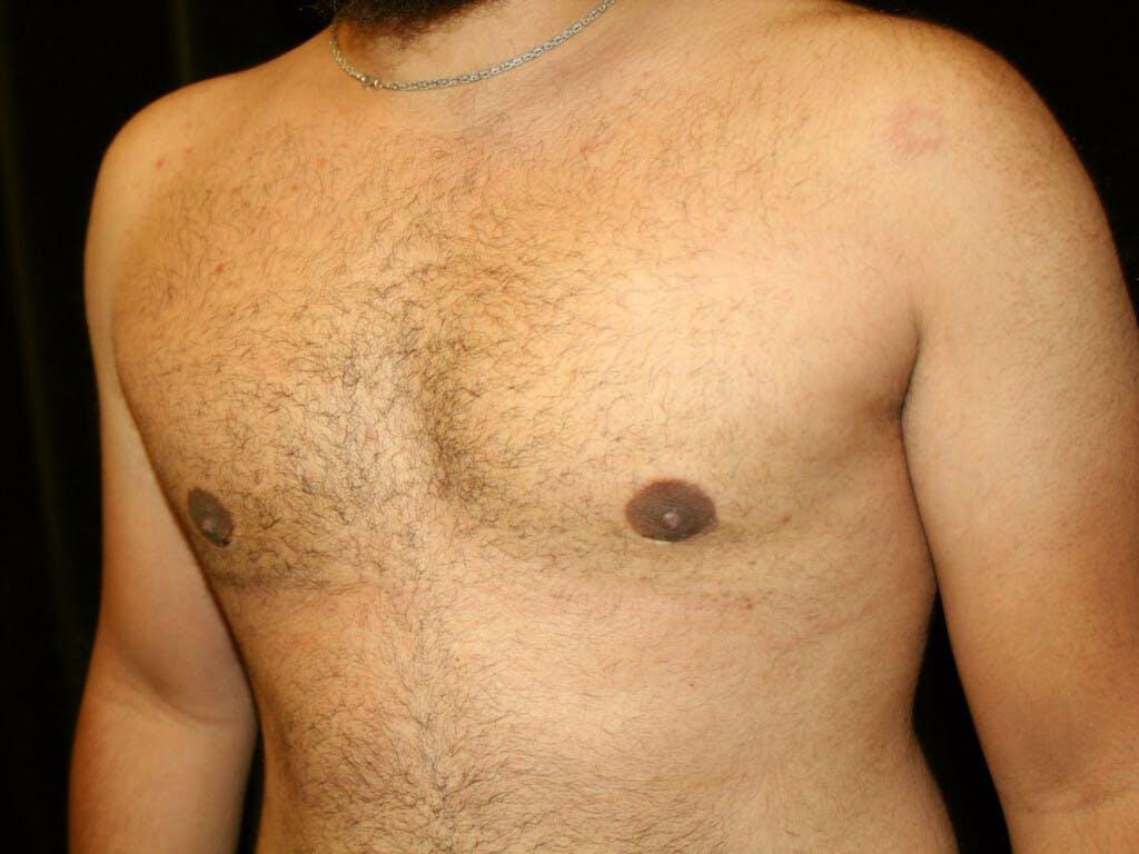 Gynecomastia Gallery - Patient 39352517 - Image 8