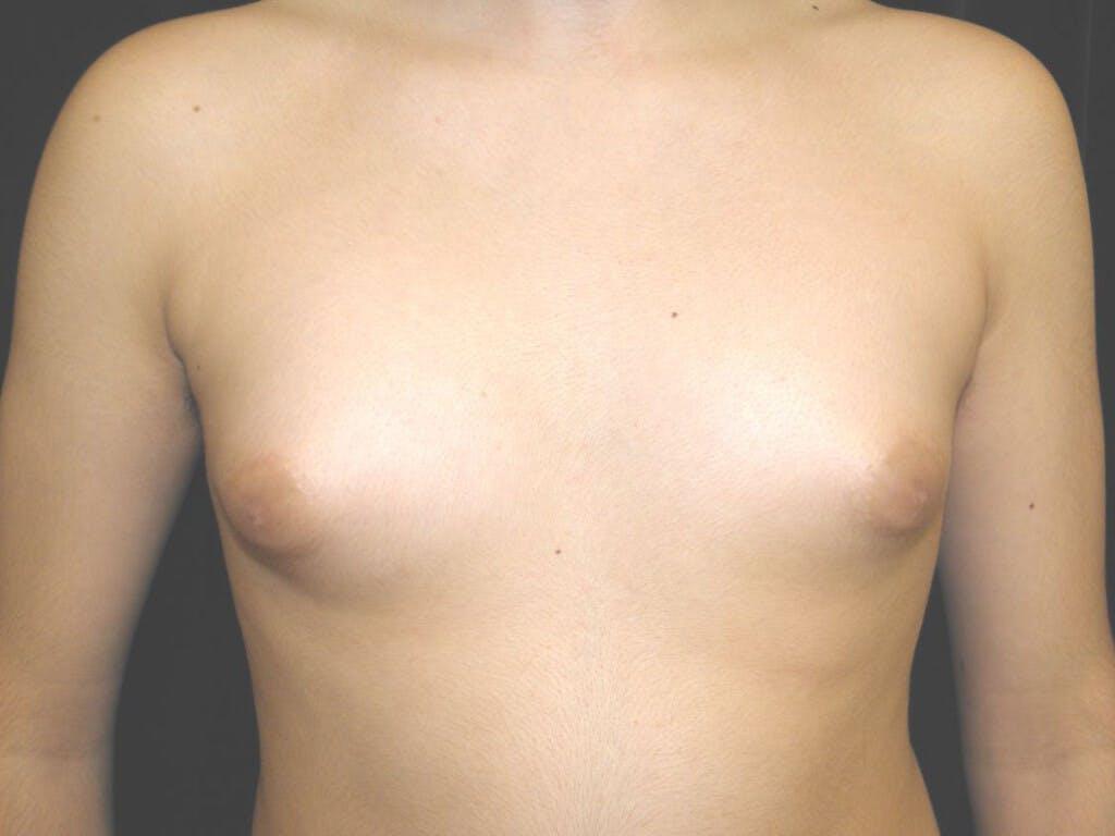 Gynecomastia Gallery - Patient 39352530 - Image 1