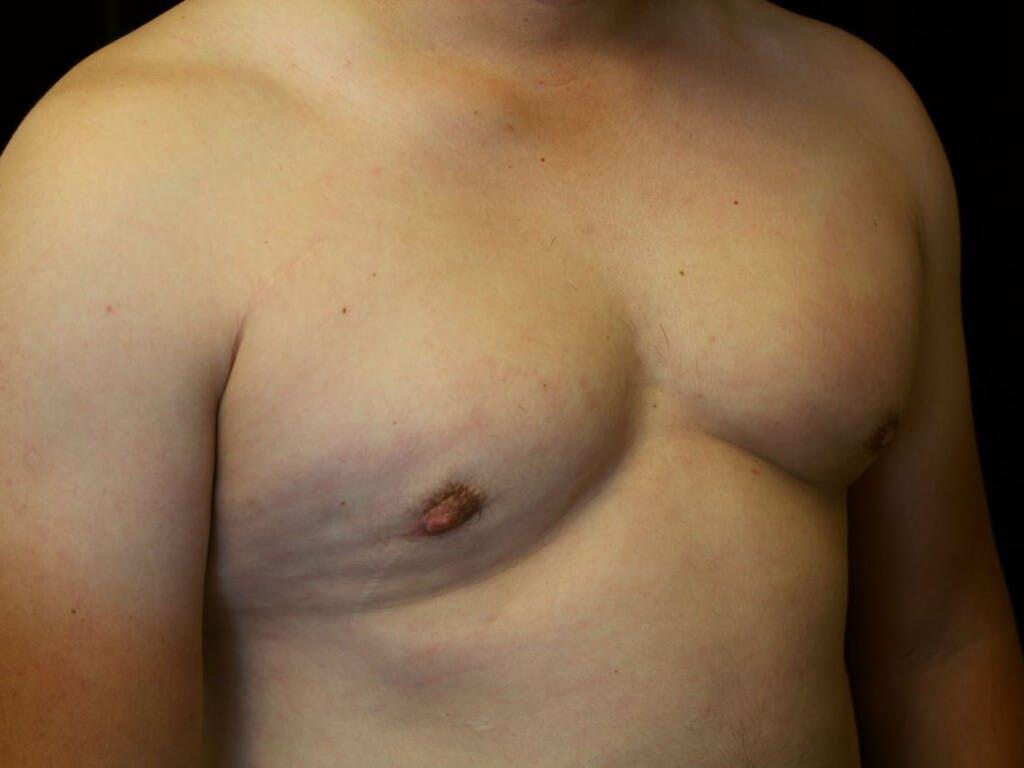 Gynecomastia Gallery - Patient 39352547 - Image 4