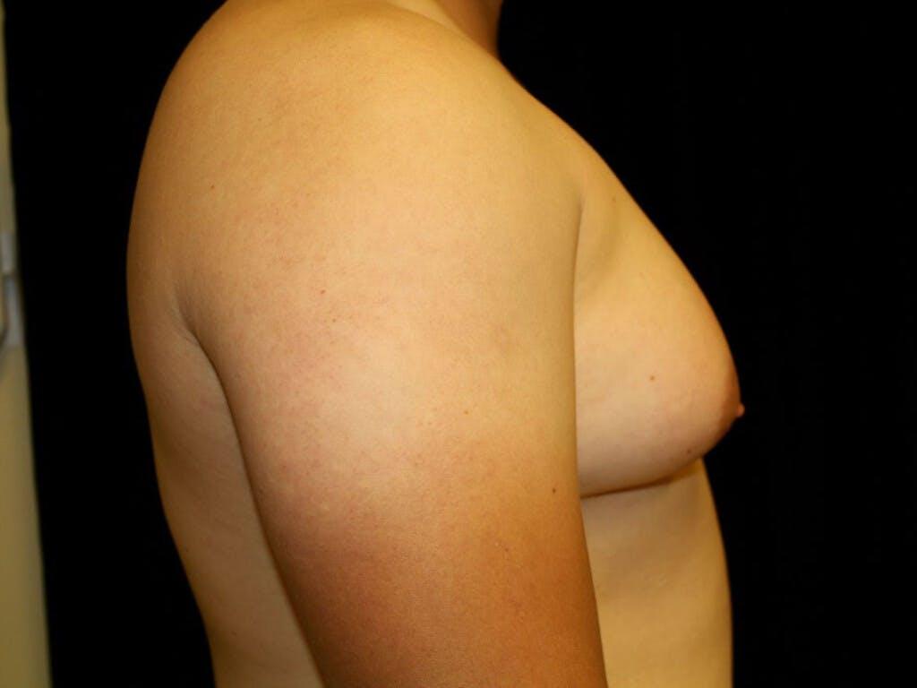 Gynecomastia Gallery - Patient 39352547 - Image 5