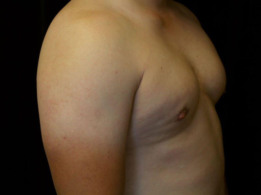 Gynecomastia Gallery - Patient 39352547 - Image 6