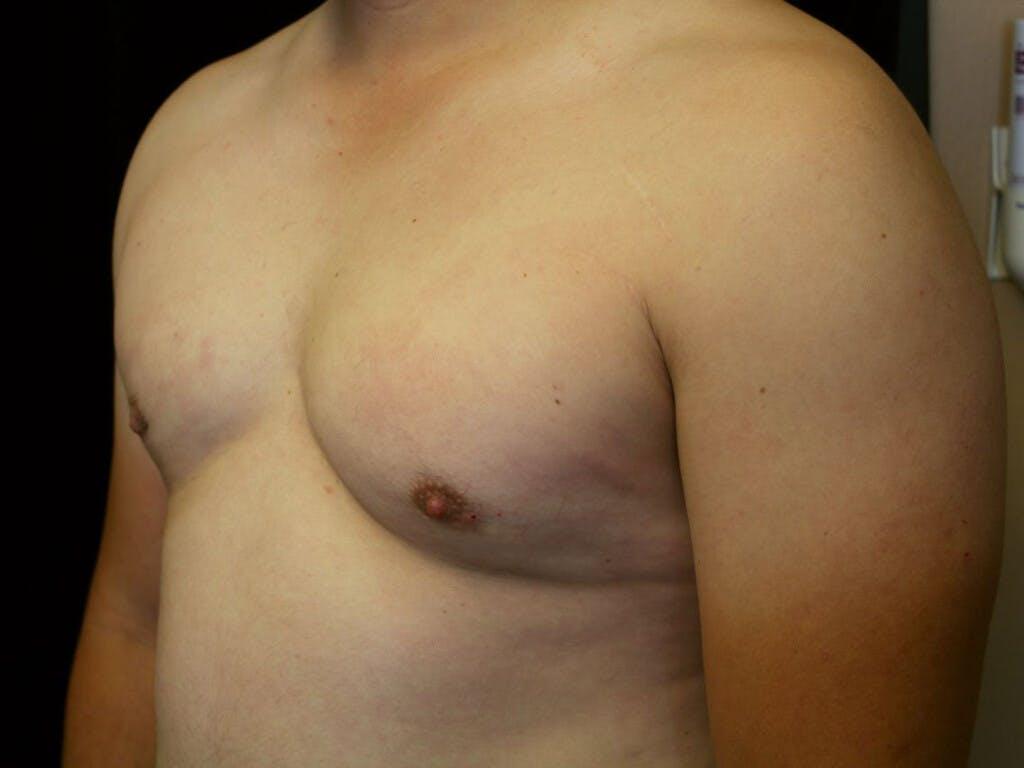 Gynecomastia Gallery - Patient 39352547 - Image 8