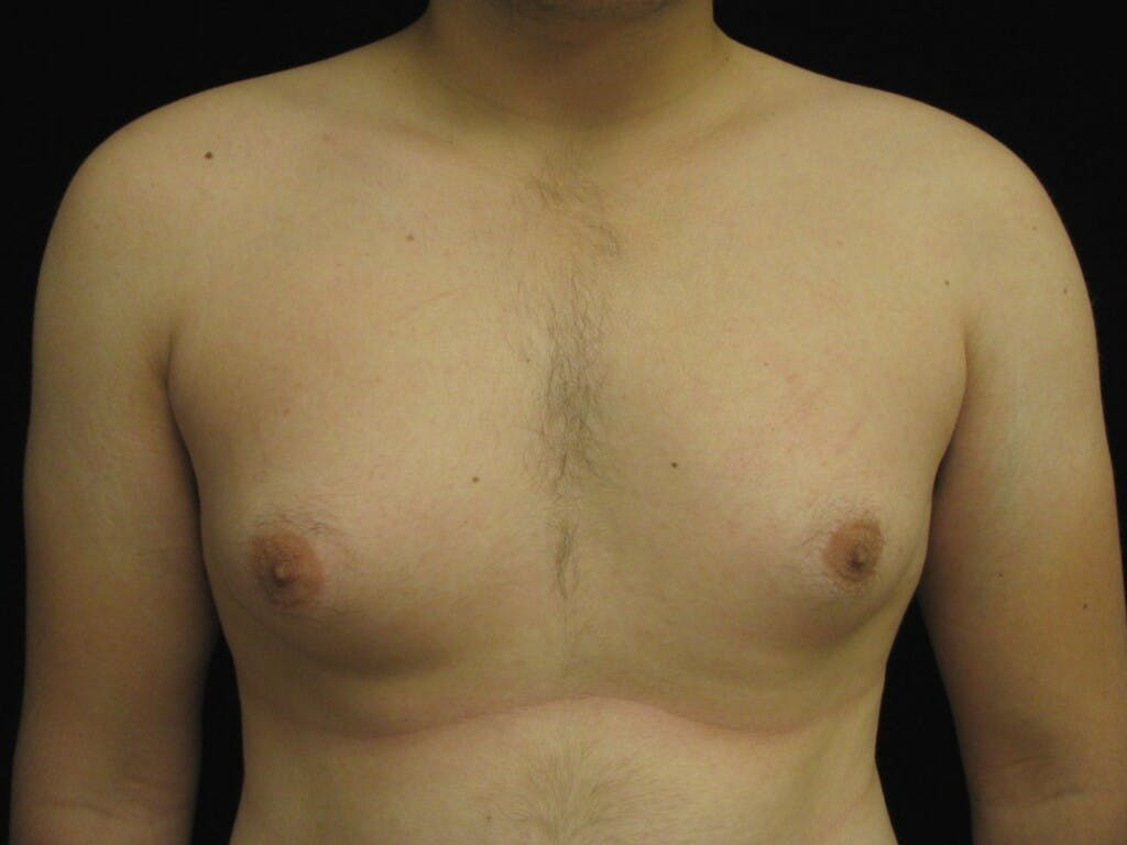 Gynecomastia Gallery - Patient 39352549 - Image 1