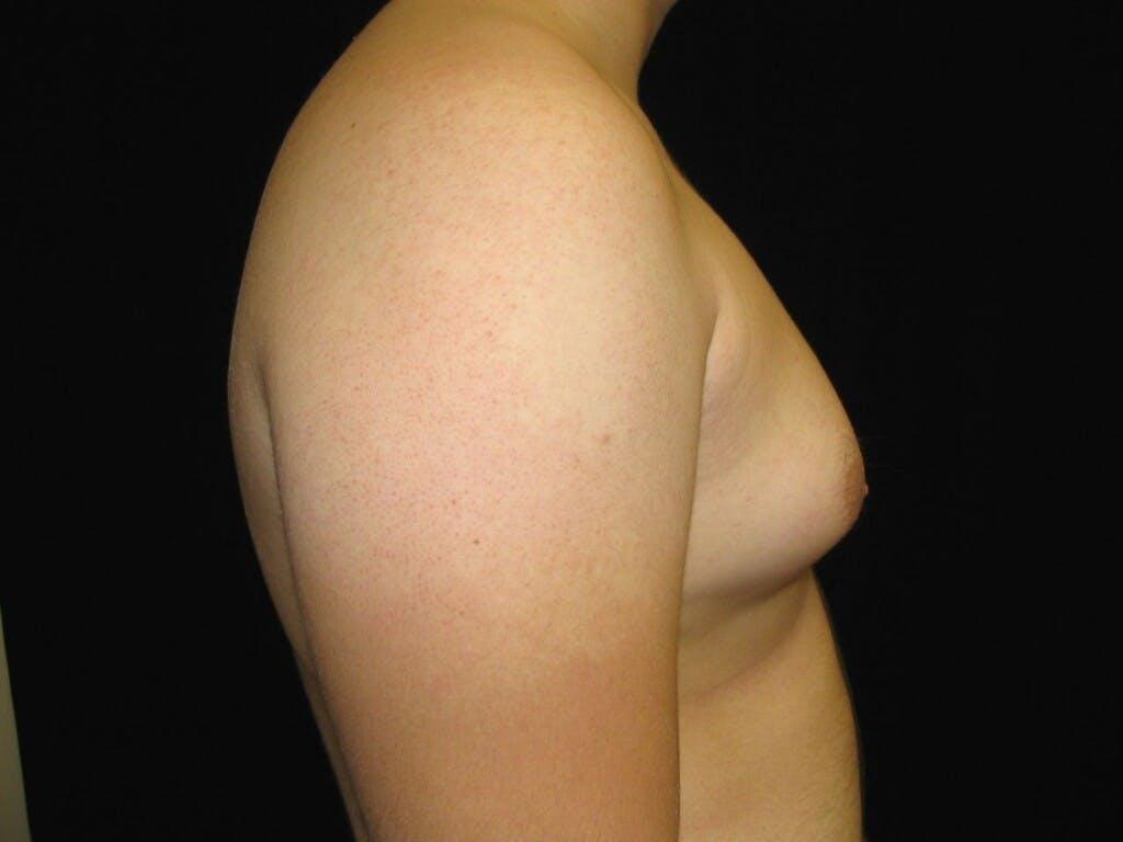 Gynecomastia Gallery - Patient 39352549 - Image 3