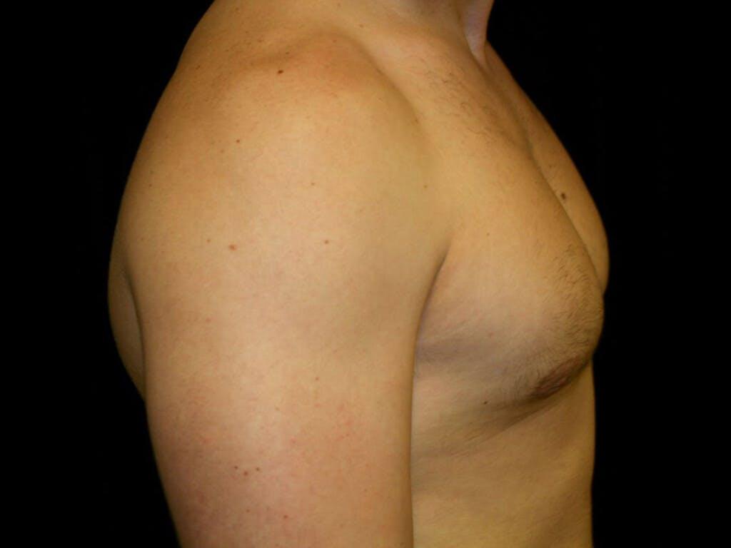 Gynecomastia Gallery - Patient 39352551 - Image 6