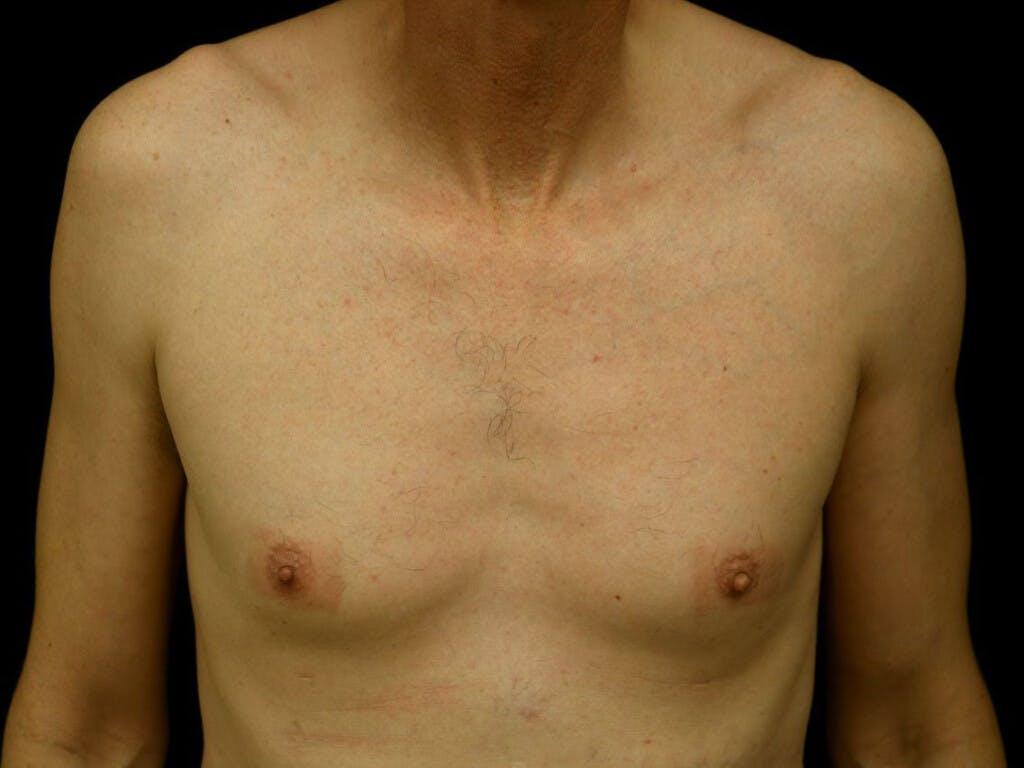 Gynecomastia Gallery - Patient 39352554 - Image 1