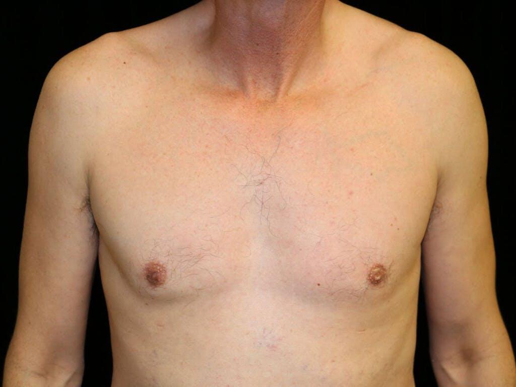 Gynecomastia Gallery - Patient 39352554 - Image 2