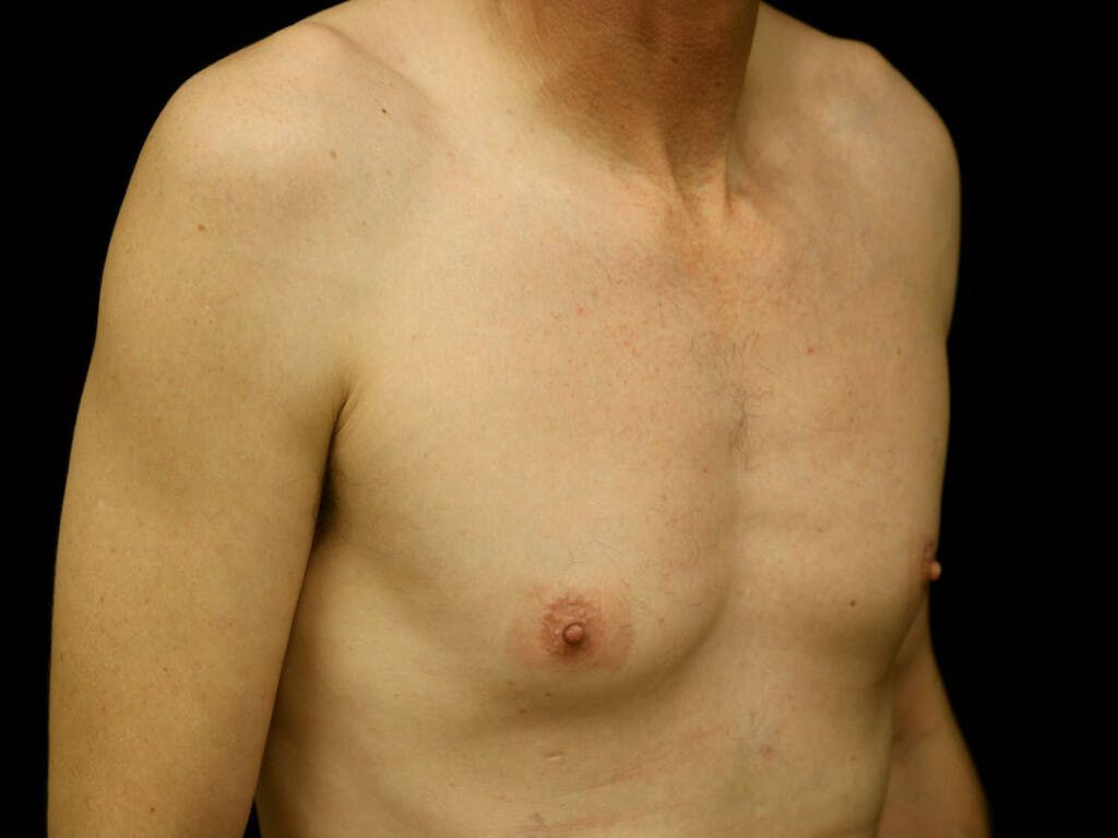Gynecomastia Gallery - Patient 39352554 - Image 3