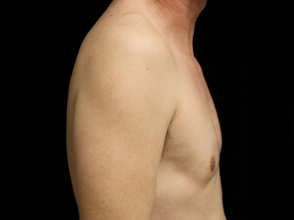 Gynecomastia Gallery - Patient 39352554 - Image 6