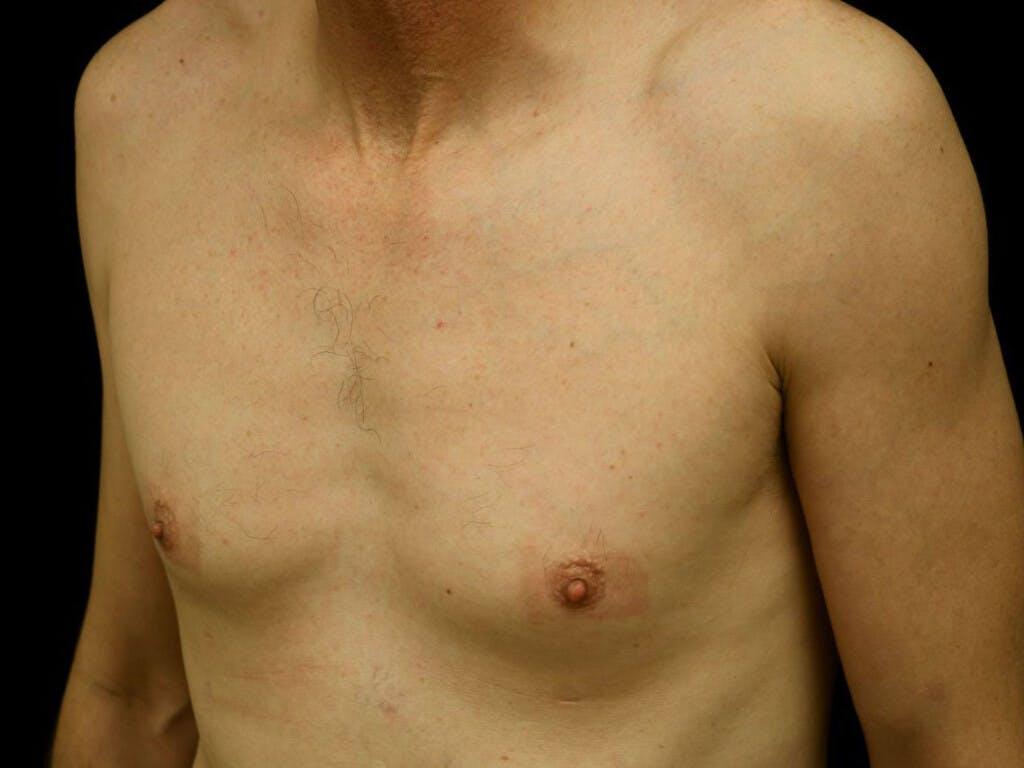 Gynecomastia Gallery - Patient 39352554 - Image 7