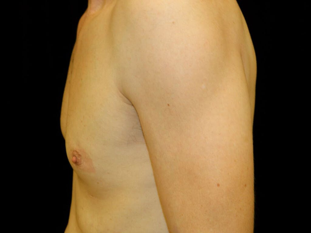 Gynecomastia Gallery - Patient 39352554 - Image 9