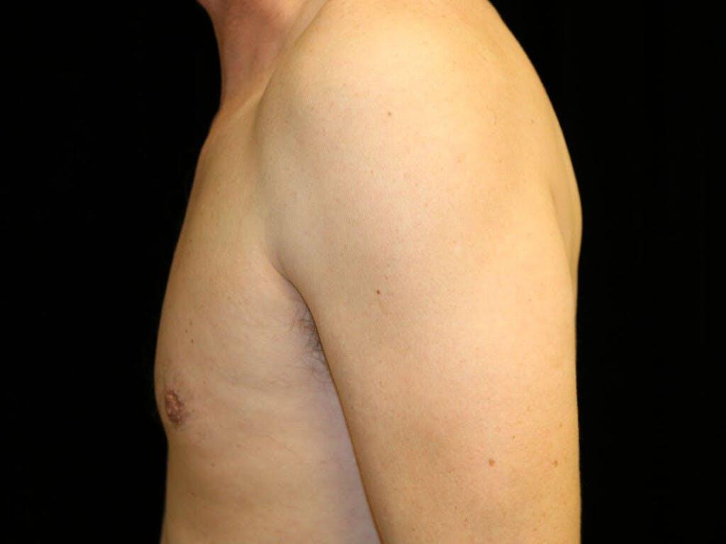 Gynecomastia Gallery - Patient 39352554 - Image 10