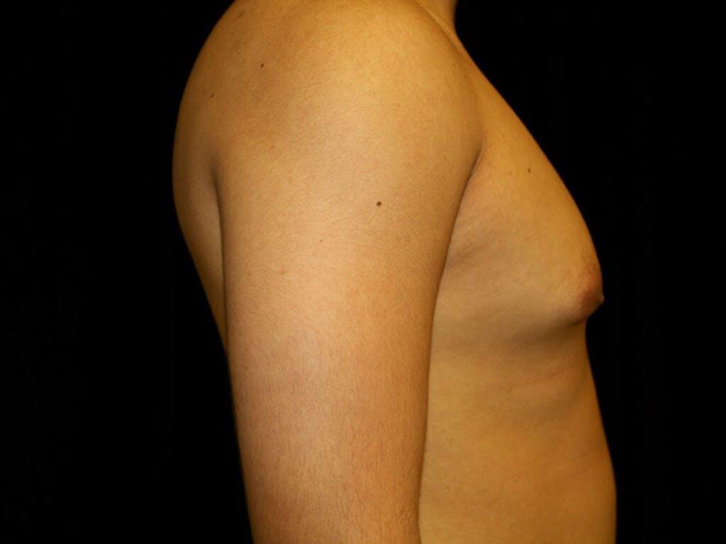 Gynecomastia Gallery - Patient 39352557 - Image 3