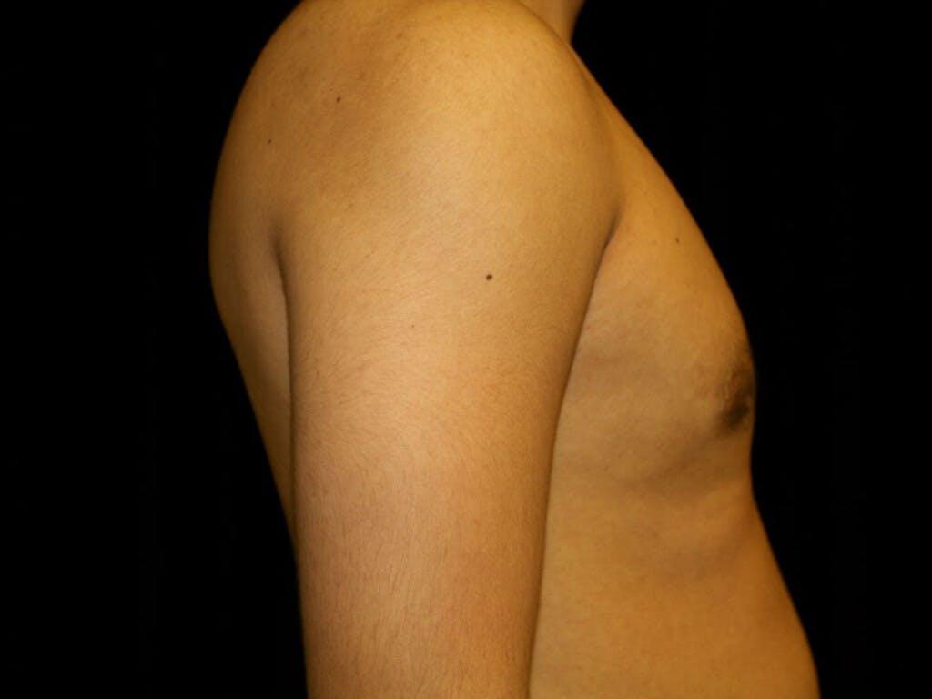 Gynecomastia Gallery - Patient 39352557 - Image 4