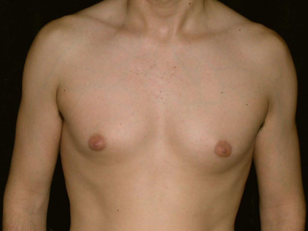 Gynecomastia Gallery - Patient 39352558 - Image 1