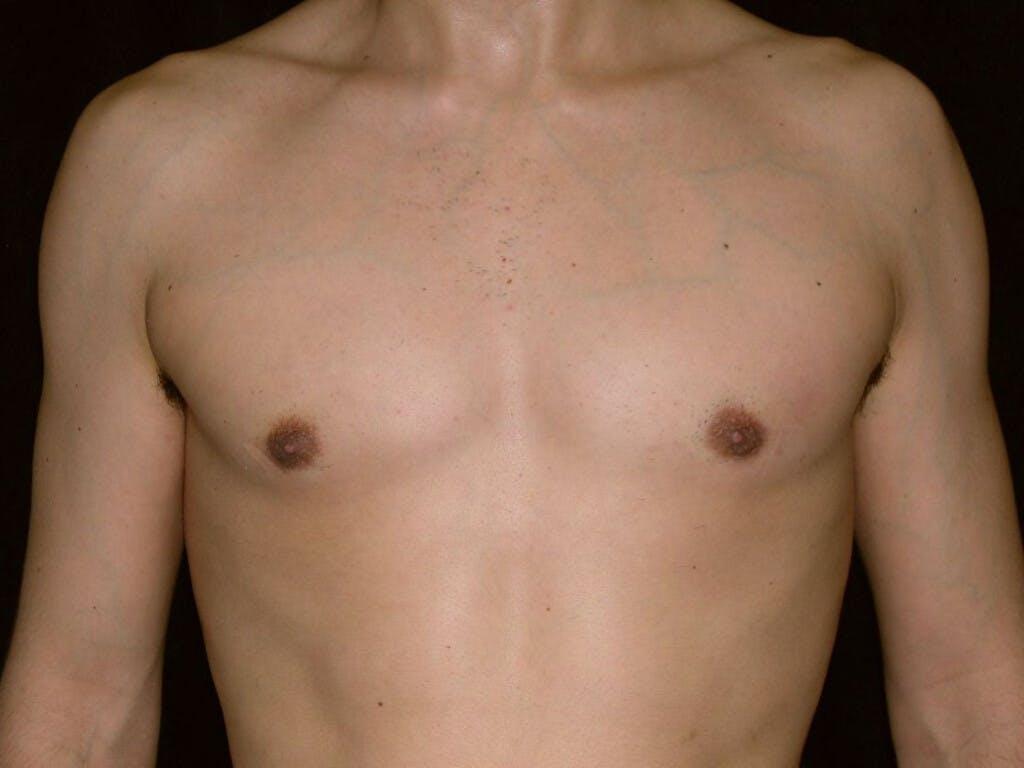 Gynecomastia Gallery - Patient 39352558 - Image 2