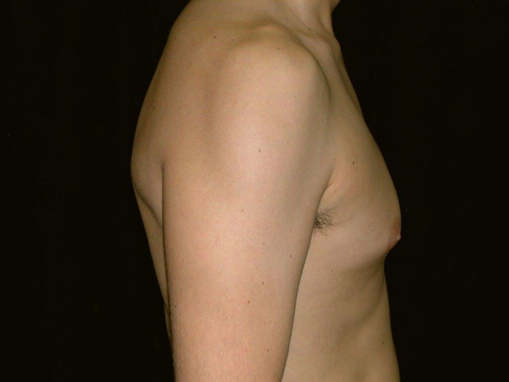 Gynecomastia Gallery - Patient 39352558 - Image 3