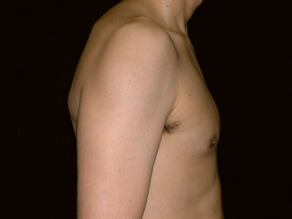 Gynecomastia Gallery - Patient 39352558 - Image 4