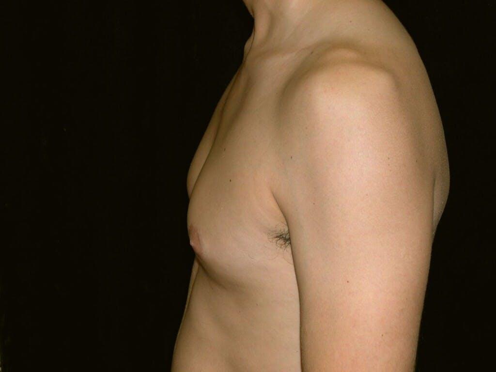 Gynecomastia Gallery - Patient 39352558 - Image 5