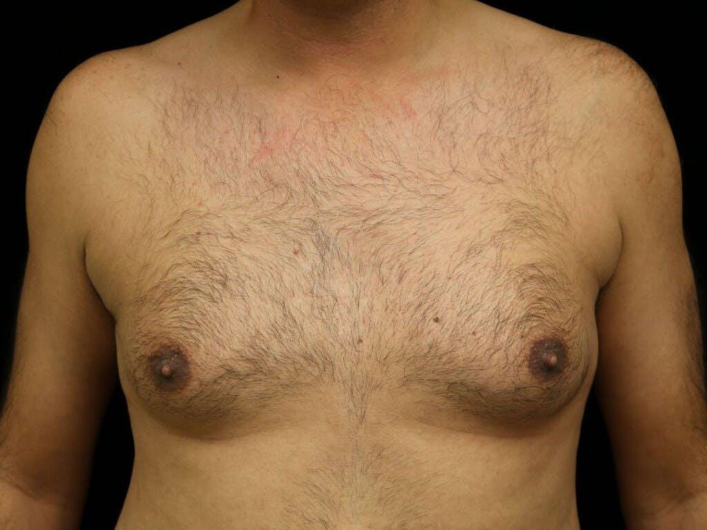 Gynecomastia Gallery - Patient 39352566 - Image 1