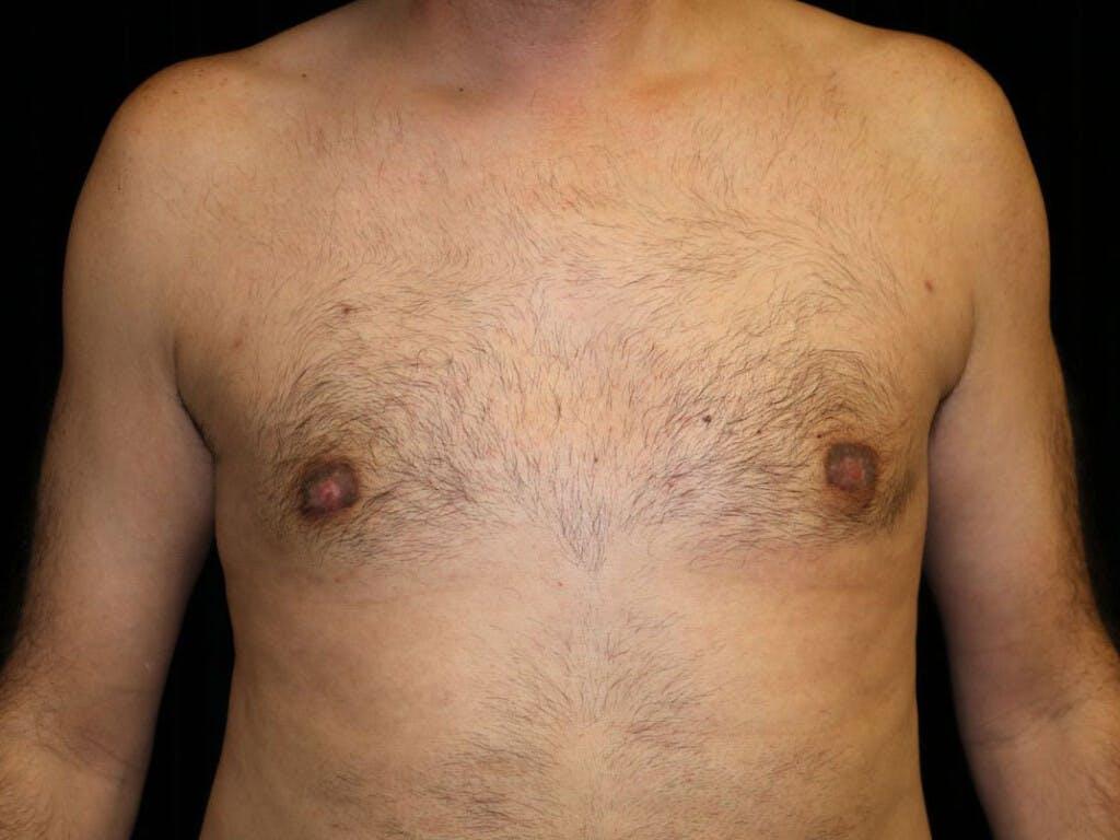 Gynecomastia Gallery - Patient 39352566 - Image 2