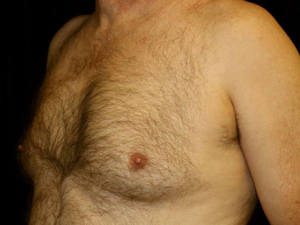 Gynecomastia Gallery - Patient 39352566 - Image 5