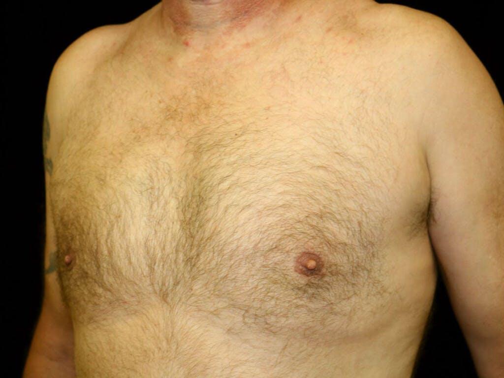 Gynecomastia Gallery - Patient 39352566 - Image 6