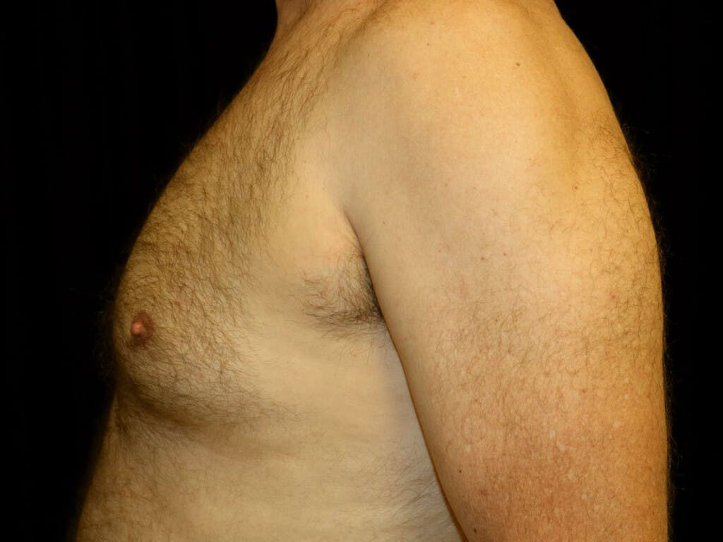 Gynecomastia Gallery - Patient 39352566 - Image 7