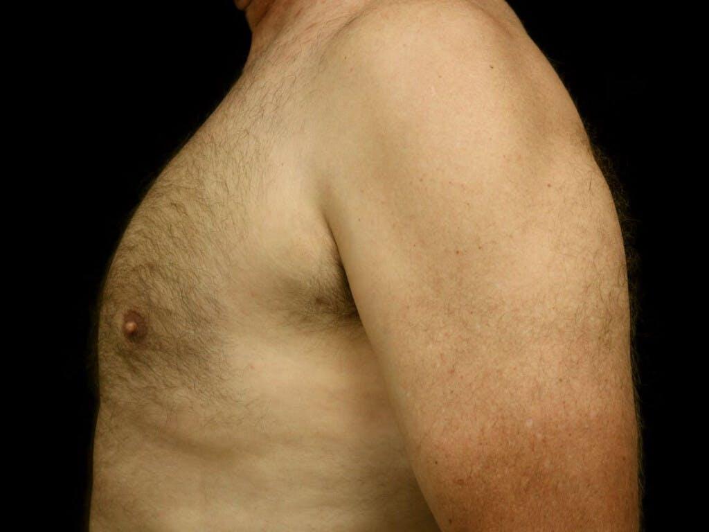 Gynecomastia Gallery - Patient 39352566 - Image 8