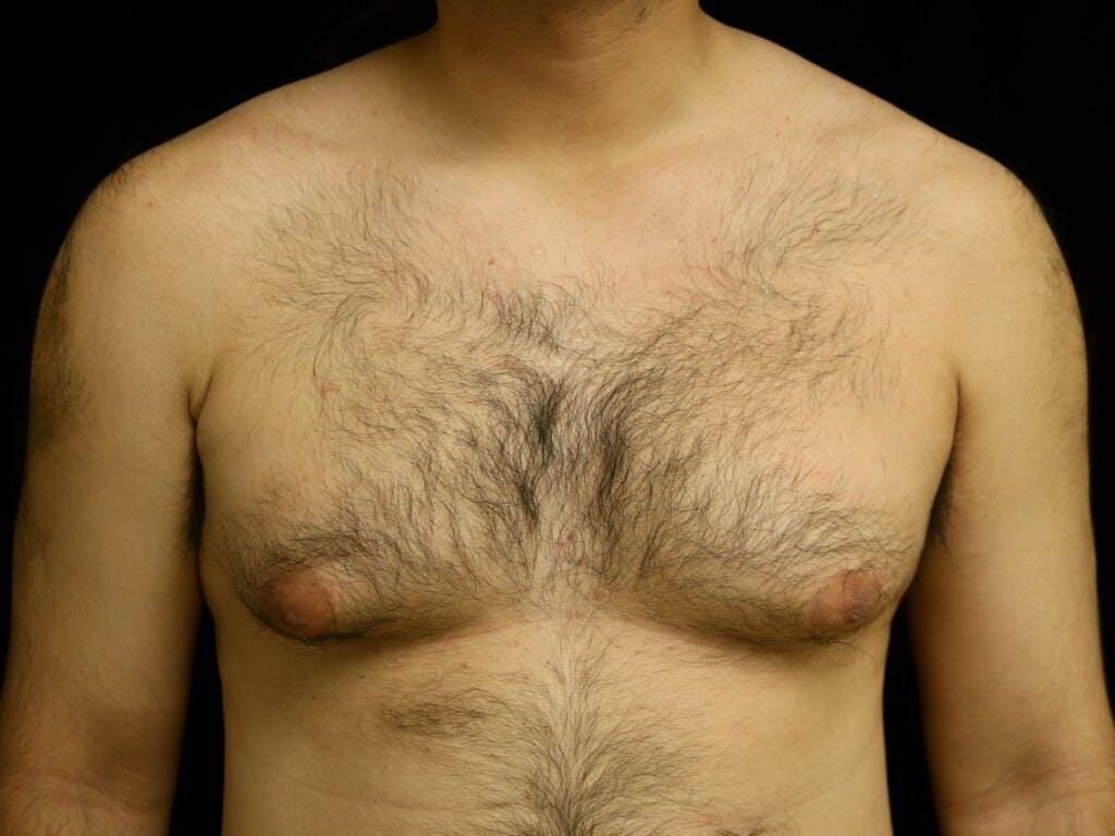 Gynecomastia Gallery - Patient 39352567 - Image 1