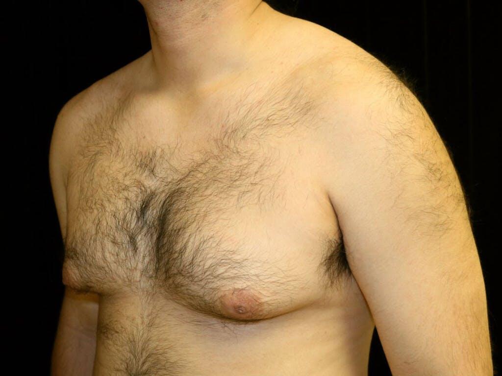 Gynecomastia Gallery - Patient 39352567 - Image 5
